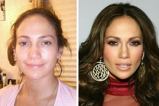 jennifer lopez Plastic Surgery Before After
