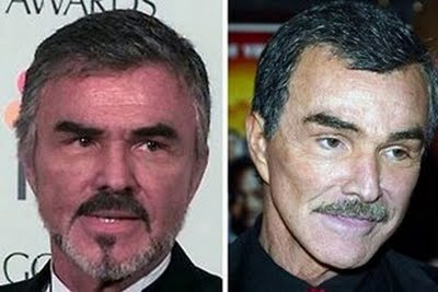 Burt Reynolds Plastic Surgery Before After