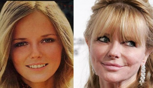 Cheryl Tiegs Body Transformation
