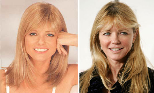 Cheryl Tiegs Plastic Surgery Before After