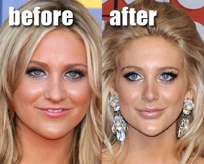 Stephanie Pratt Plastic Surgery Before After
