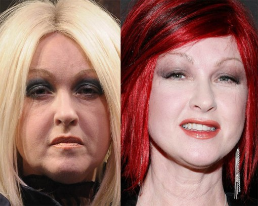 Cyndi Lauper Plastic Surgery Before After