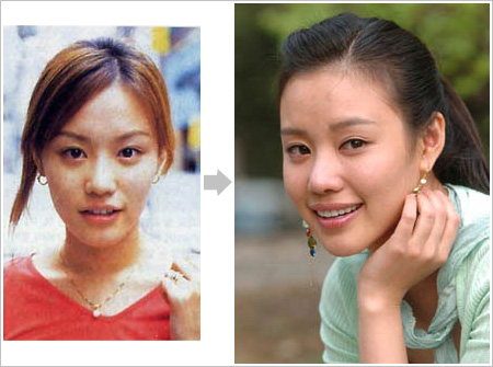 Kim Ah Joong Plastic Surgery Before After, Breast Implants