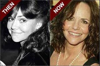 Sally Field Plastic Surgery Before After