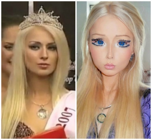 Valeria Lukyanova Plastic Surgery Before After
