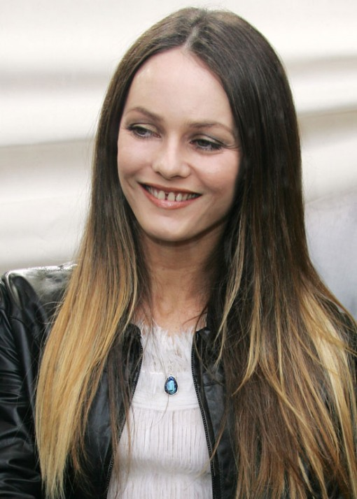 Vanessa Paradis Plastic Surgery Before After