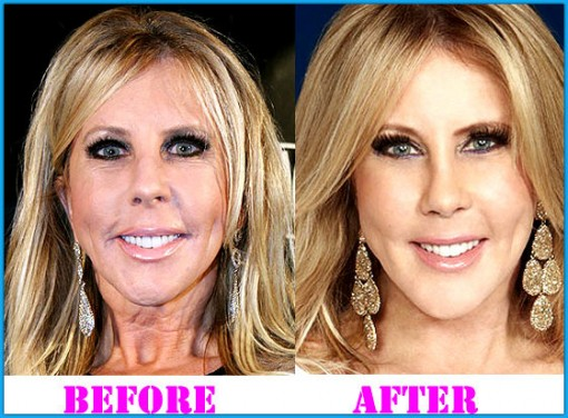 Vicki Gunvalson Body Transformation