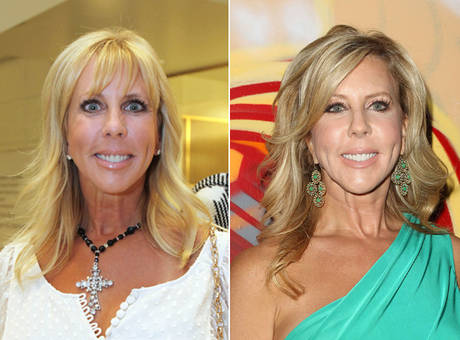 Vicki Gunvalson Plastic Surgery Before After
