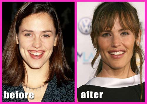 jennifer garner Plastic Surgery Before After