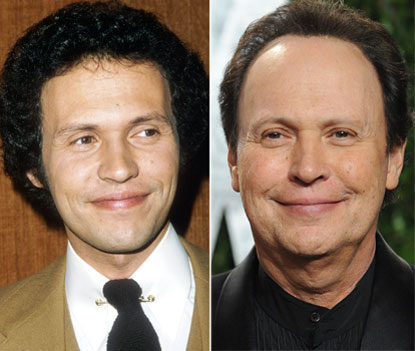 Billy Crystal Plastic Surgery Before After