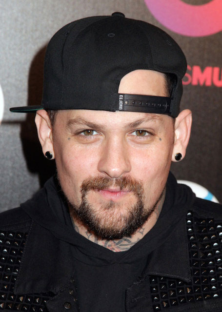 Benji Madden Plastic Surgery Before After