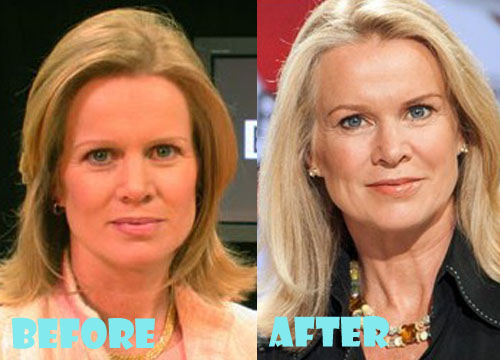 Katty Kay Plastic Surgery Before After