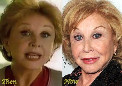 Michael Learned Plastic Surgery Before After