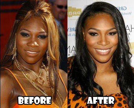 Serena Williams Plastic Surgery Before After