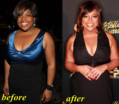 Sherri Shepherd Plastic Surgery Before After