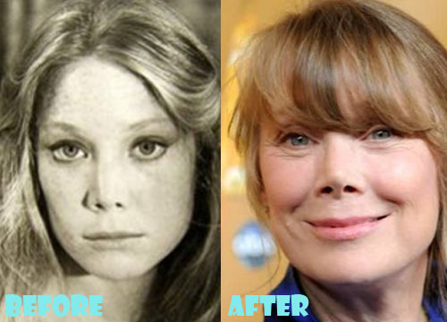 Sissy Spacek Plastic Surgery Before After