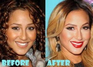 Adrienne Bailon Plastic Surgery Before After