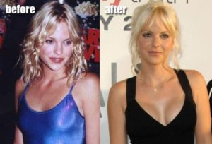 Anna Faris Plastic Surgery Before After