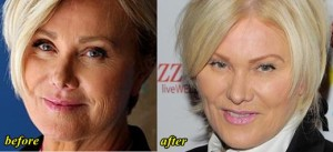 Deborra-Lee Furness Body Transformation