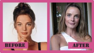 Gabrielle Anwar Plastic Surgery Before After