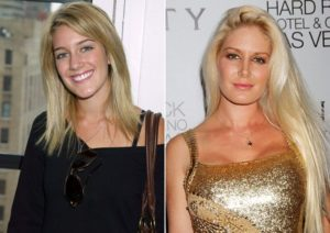 Heidi Montag Plastic Surgery Before After