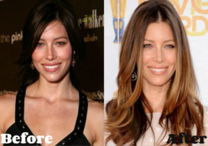 Jessica Biel Plastic Surgery Before After