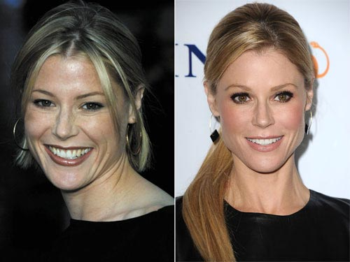 Julie Bowen Plastic Surgery Before After