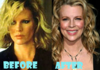 Kim Basinger Plastic Surgery Before After