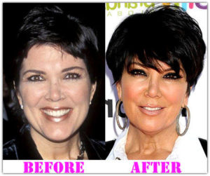 Kris Jenner Plastic Surgery Before After