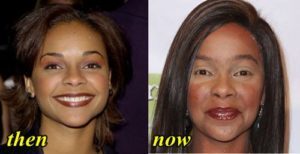 Lark Voorhies Plastic Surgery Before After