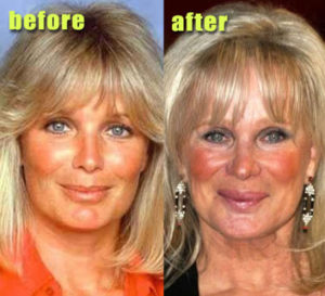 Linda Evans Body Transformation