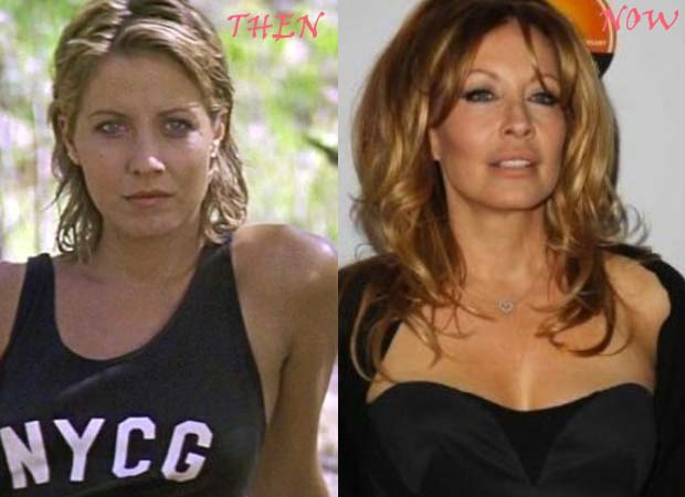 Linda Kozlowski Plastic Surgery Before After