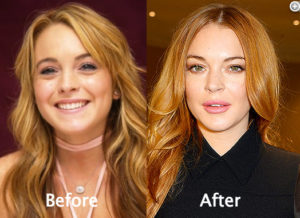 Lindsay Lohan Body Transformation