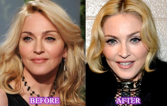 Madonna Plastic Surgery Before After