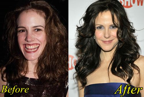 Marie Louise Parker Plastic Surgery Before After
