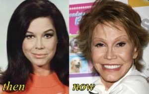 Mary Tyler Moore Body Transformation
