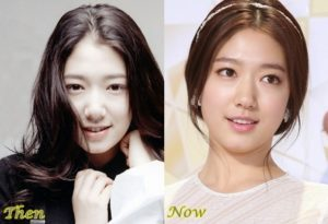 Park Shin Hye Plastic Surgery Before After