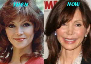 Victoria Principal Plastic Surgery Before After