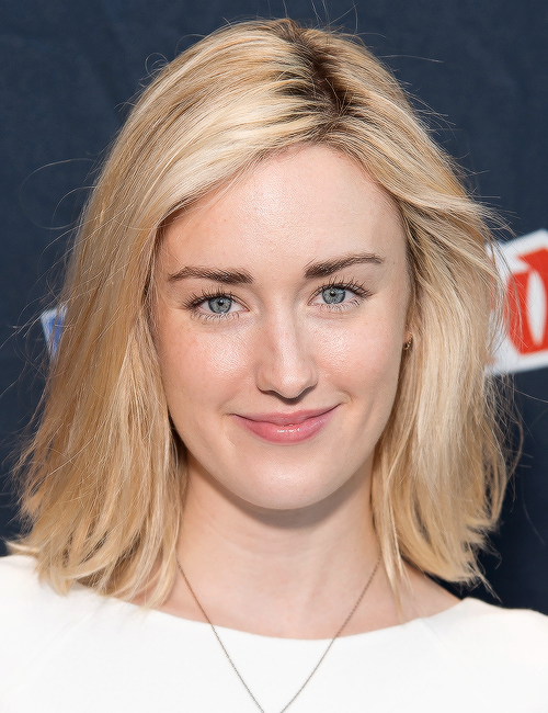 ashley-johnson-plastic-surgery-before-after