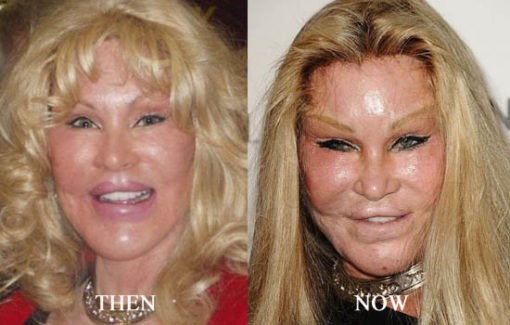 Jocelyn Wildenstein Body Transformation