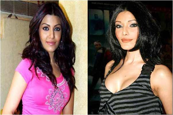 Koena Mitra Plastic Surgery Before After