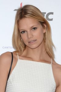 Nadine Leopold Plastic Surgery Before After